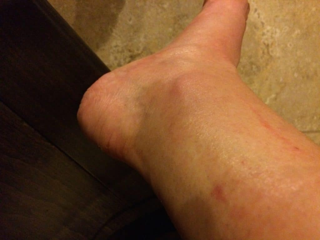ankle_injury