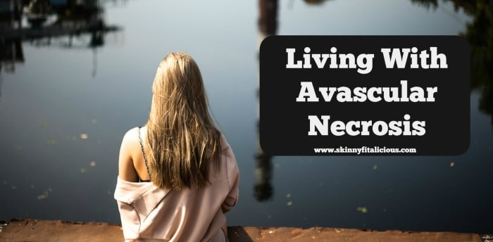 living-with-avascular-necrosis