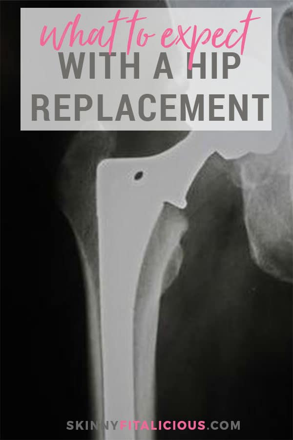 One of my biggest fears having hip replacement surgery was not knowing what recovering from a hip replacement feels like. Here's what to expect recovering from a hip replacement.