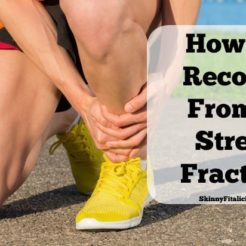 How To Recover From A Stress Fracture